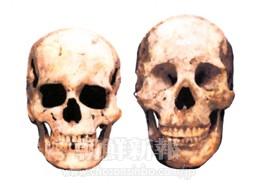 縄文人(左)と渡来系弥生人の頭蓋骨